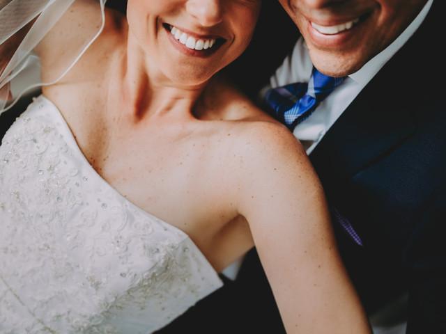 Dientes blancos: 4 claves para tener una sonrisa espectacular en tu boda