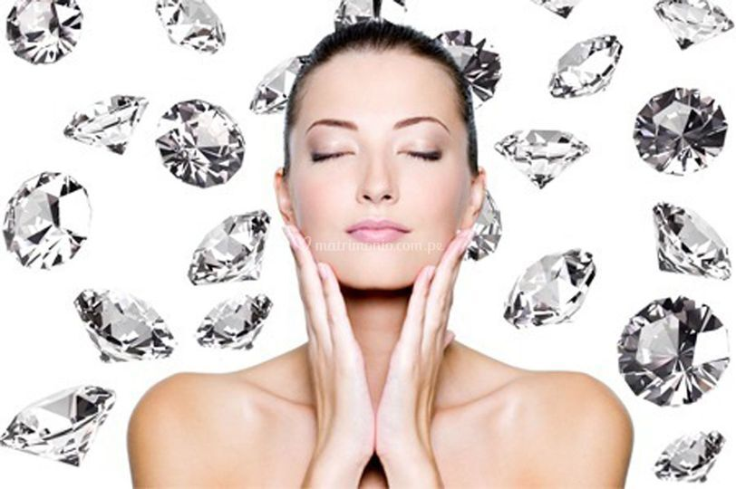Micropeeling de Diamantes